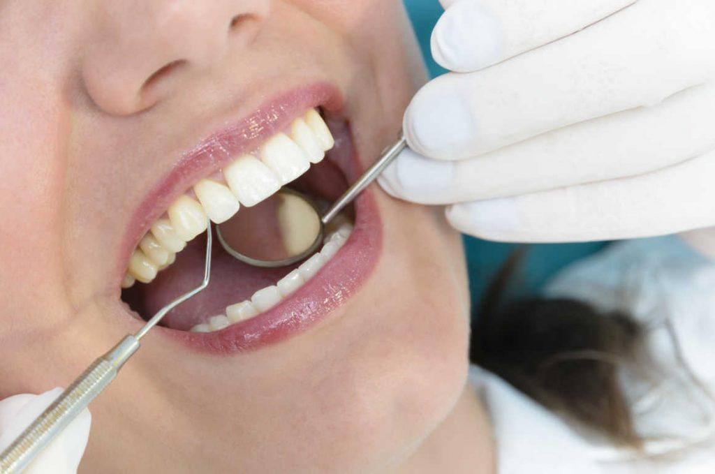 La falta de visitas al dentista estaría detrás de la mala salud bucodental de la población española